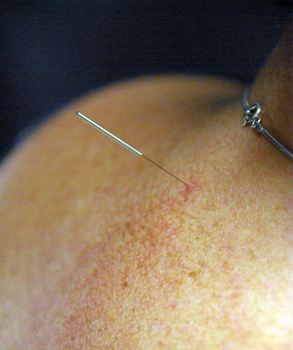 FreeFlo Physio - Acupuncture